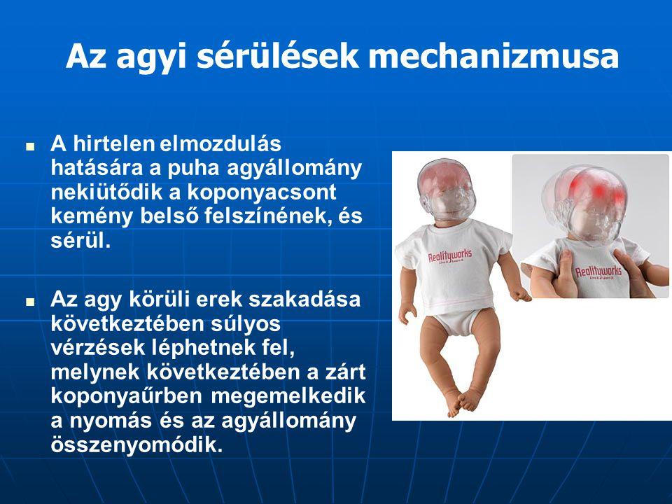 Az agyi sérülések mechanizmusa A hirtelen elmozdulás hatására a puha agyállomány nekiütődik a koponyacsont kemény belső felszínének, és sérül. Az agy