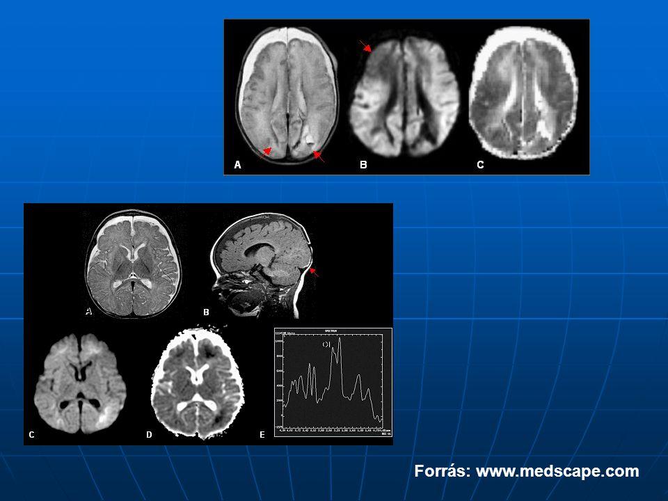 Forrás: www.medscape.com
