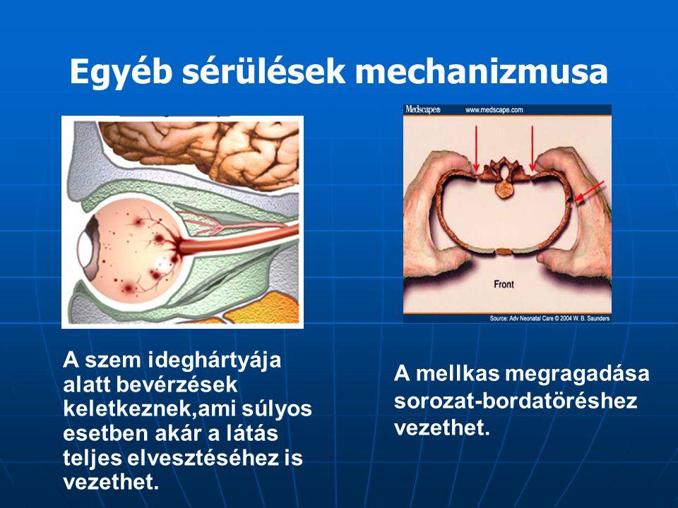 A szem ideghártyája alatt bevérzések keletkeznek,ami súlyos esetben akár a látás teljes elvesztéséhez is vezethet. Egyéb sérülések mechanizmusa A mell