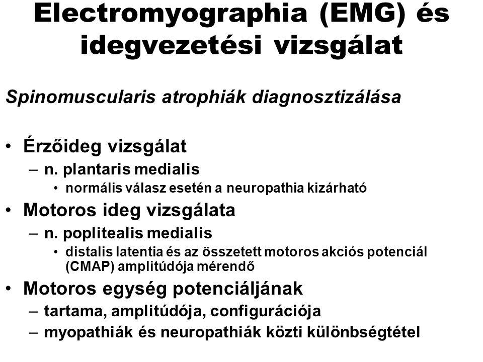 Electromyographia (EMG) és idegvezetési vizsgálat Spinomuscularis atrophiák diagnosztizálása Érzőideg vizsgálat –n. plantaris medialis normális válasz