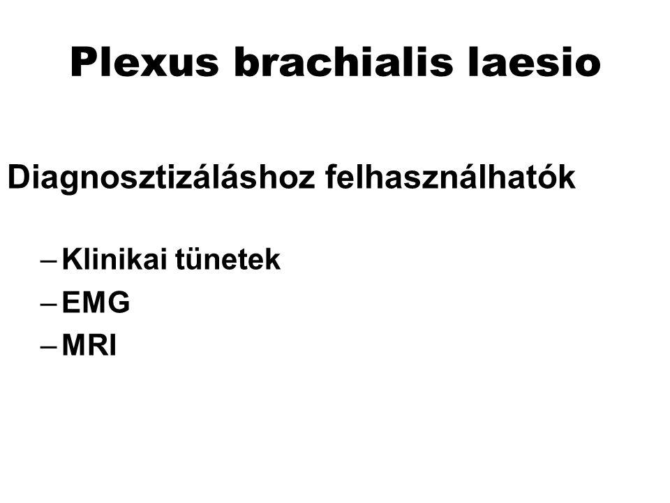 Plexus brachialis laesio Diagnosztizáláshoz felhasználhatók –Klinikai tünetek –EMG –MRI