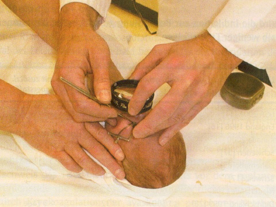 Szemészeti vizsgálatok Szemfenék vizsgálat –tágított pupilla (baby csepp) –direkt és indirekt binocularis ophthalmoscopia –az első vizsgálat időpontja