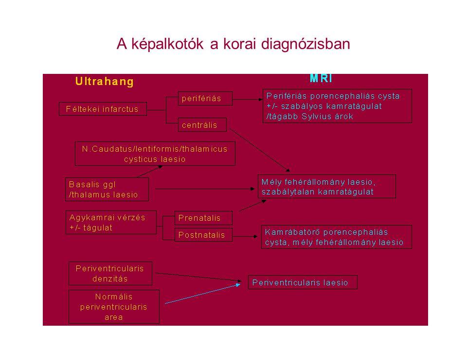 Az érett újszülöttek hypoxiás-ischaemiás károsodásai Pathologia: Cytotoxicus agyoedema (12-72 óra) Thalamus infarctus (1-3 nap) A szürkeállomány sérülése (>2 hét) A fehérállomány sérülése (>2 hét) A basalis ganglionok sérülése (2 héttől 9 hónapig) Klinikum: 3 stádium súlyosság szerint Prognosis: a 2.