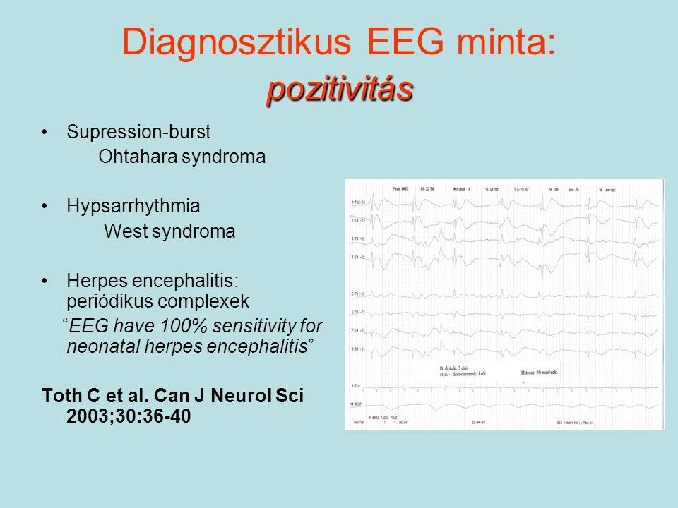 pozitivitás Diagnosztikus EEG minta: pozitivitás Supression-burst Ohtahara syndroma Hypsarrhythmia West syndroma Herpes encephalitis: periódikus compl
