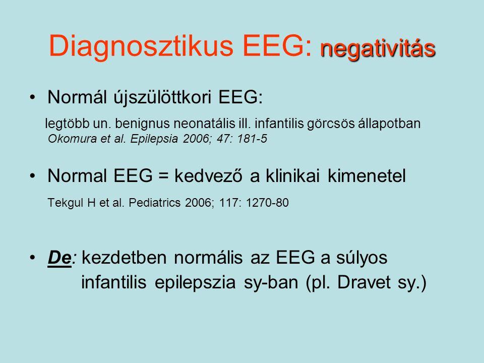 negativitás Diagnosztikus EEG: negativitás Normál újszülöttkori EEG: legtöbb un. benignus neonatális ill. infantilis görcsös állapotban Okomura et al.