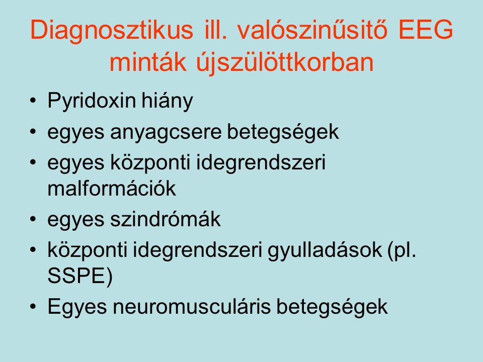 Diagnosztikus ill. valószinűsitő EEG minták újszülöttkorban Pyridoxin hiány egyes anyagcsere betegségek egyes központi idegrendszeri malformációk egye