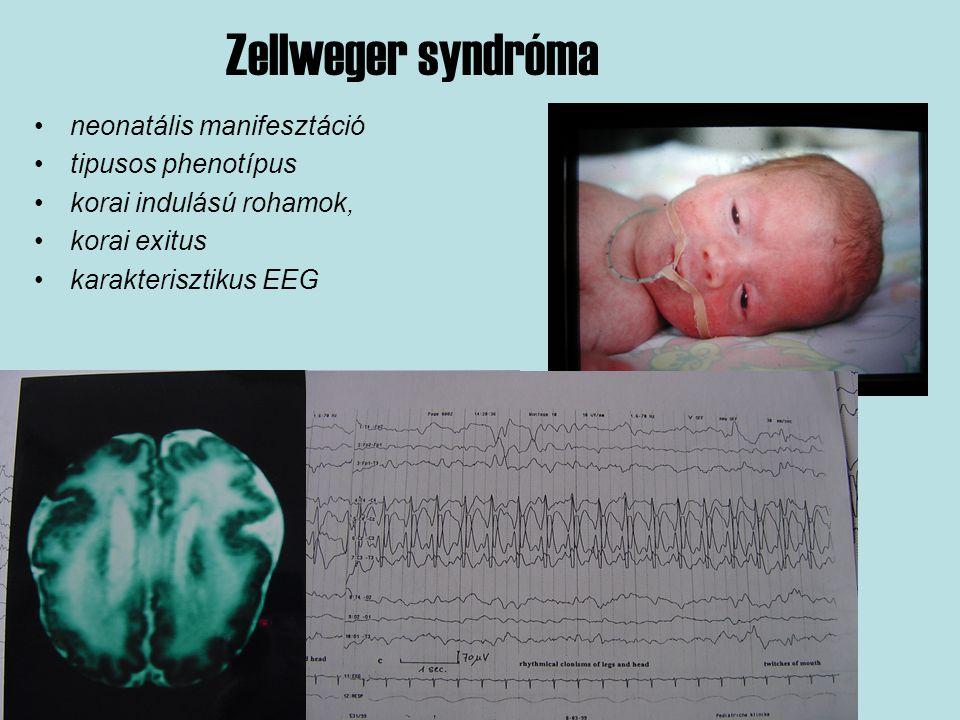 Zellweger syndróma neonatális manifesztáció tipusos phenotípus korai indulású rohamok, korai exitus karakterisztikus EEG
