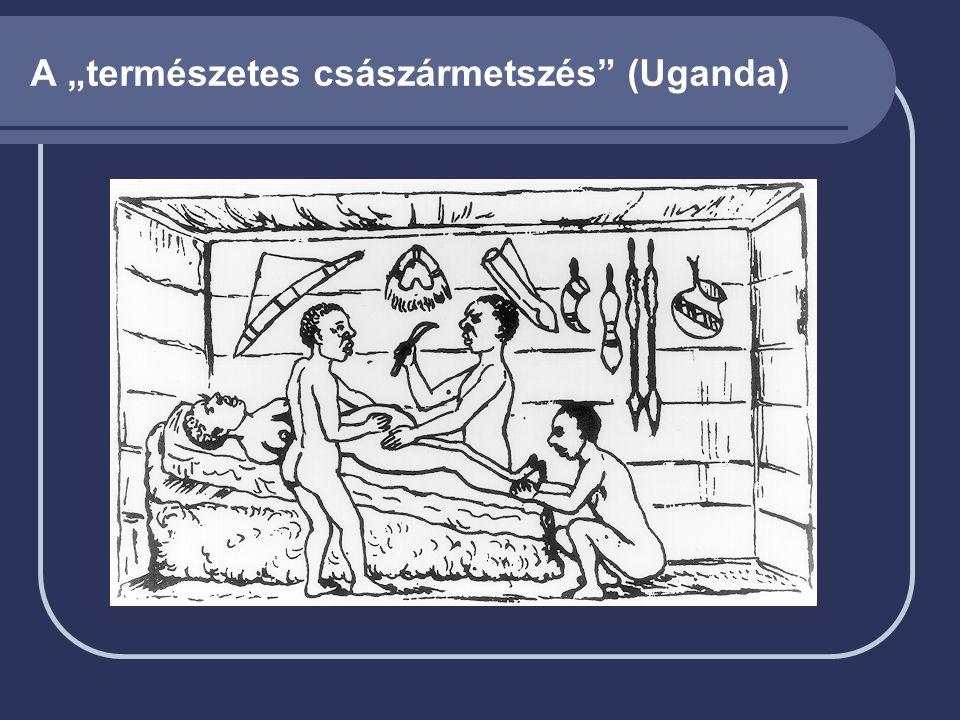 """A """"természetes császármetszés"""" (Uganda)"""