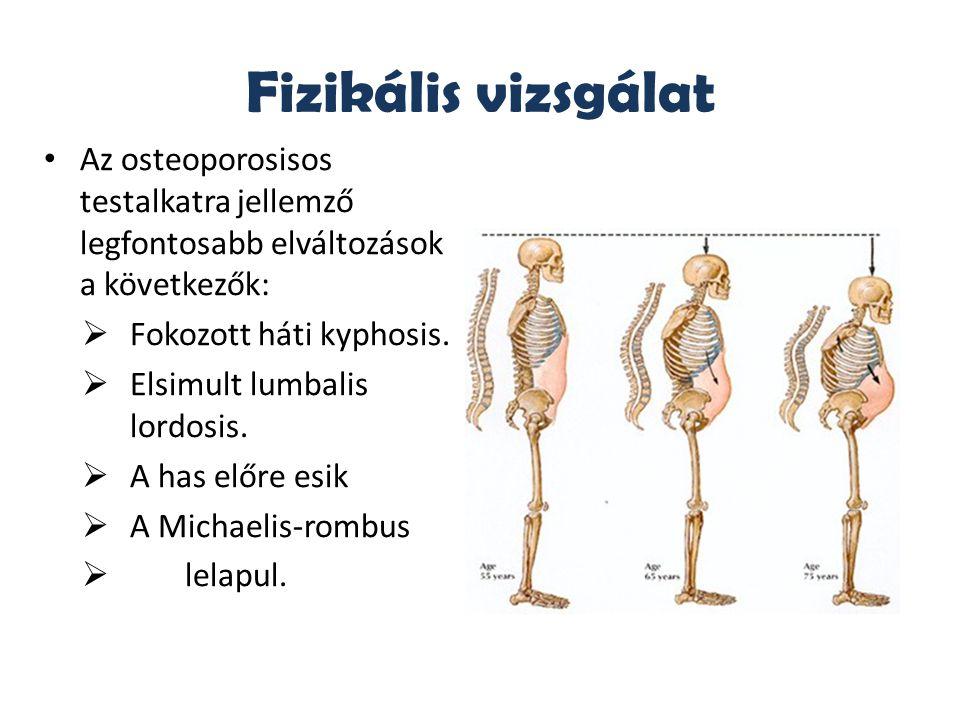 Fizikális vizsgálat Az osteoporosisos testalkatra jellemző legfontosabb elváltozások a következők:  Fokozott háti kyphosis.