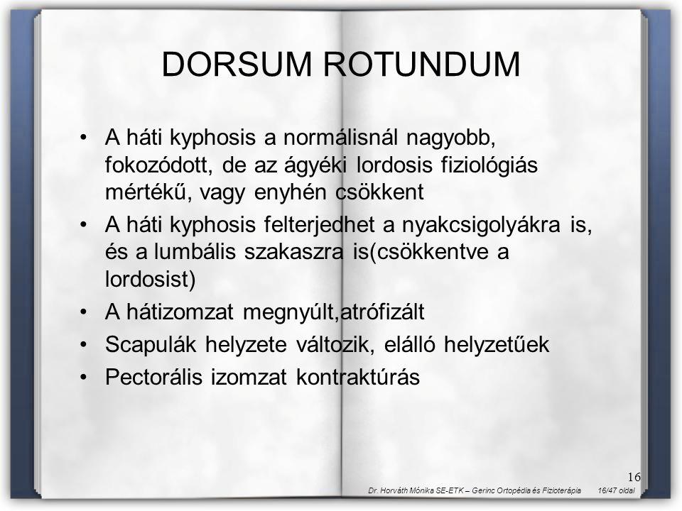 16/47 oldalDr. Horváth Mónika SE-ETK – Gerinc Ortopédia és Fizioterápia 16 DORSUM ROTUNDUM A háti kyphosis a normálisnál nagyobb, fokozódott, de az ág