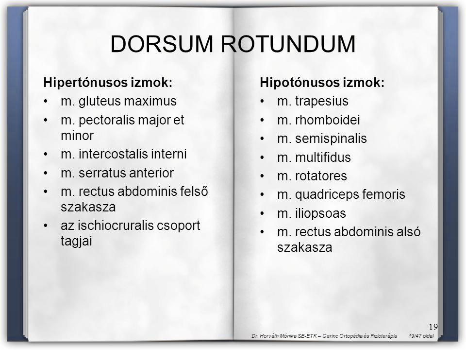 19/47 oldalDr. Horváth Mónika SE-ETK – Gerinc Ortopédia és Fizioterápia 19 DORSUM ROTUNDUM Hipertónusos izmok: m. gluteus maximus m. pectoralis major