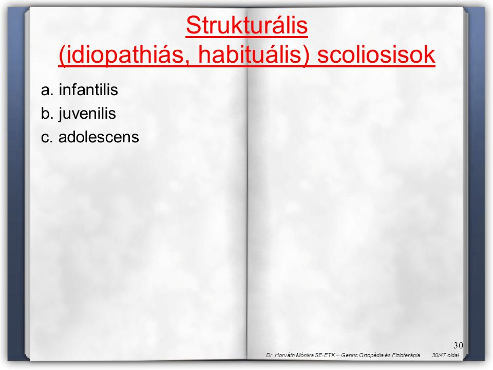 30/47 oldalDr. Horváth Mónika SE-ETK – Gerinc Ortopédia és Fizioterápia 30 Strukturális (idiopathiás, habituális) scoliosisok a. infantilis b. juvenil