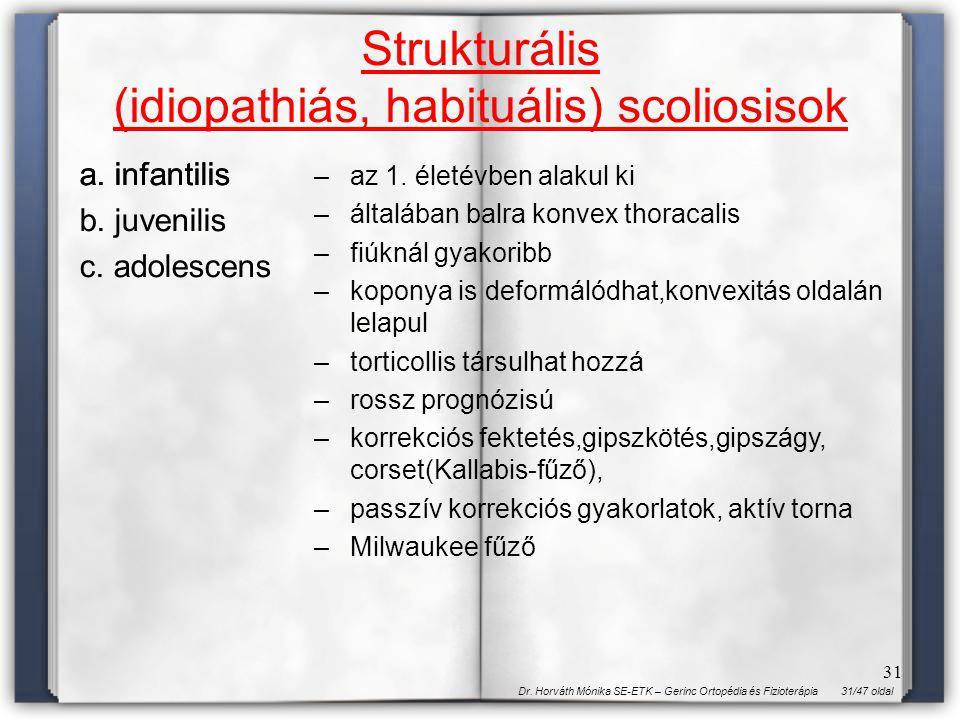 31/47 oldalDr. Horváth Mónika SE-ETK – Gerinc Ortopédia és Fizioterápia 31 Strukturális (idiopathiás, habituális) scoliosisok a. infantilis b. juvenil