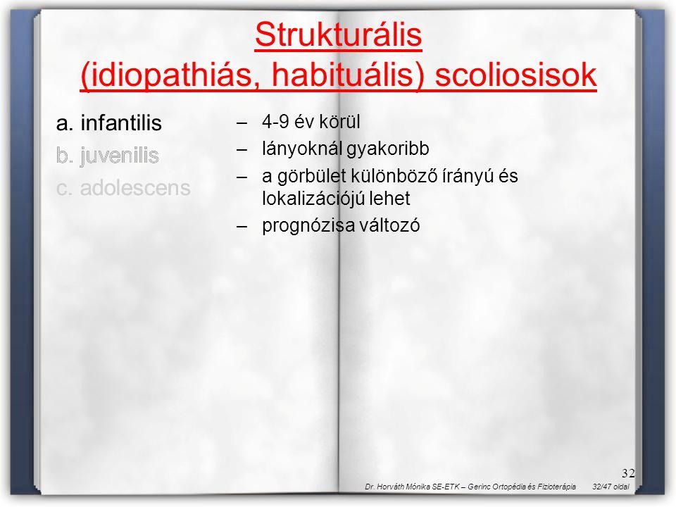 32/47 oldalDr. Horváth Mónika SE-ETK – Gerinc Ortopédia és Fizioterápia 32 Strukturális (idiopathiás, habituális) scoliosisok a. infantilis b. juvenil