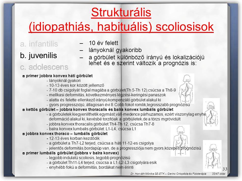 33/47 oldalDr. Horváth Mónika SE-ETK – Gerinc Ortopédia és Fizioterápia 33 Strukturális (idiopathiás, habituális) scoliosisok a. infantilis b. juvenil