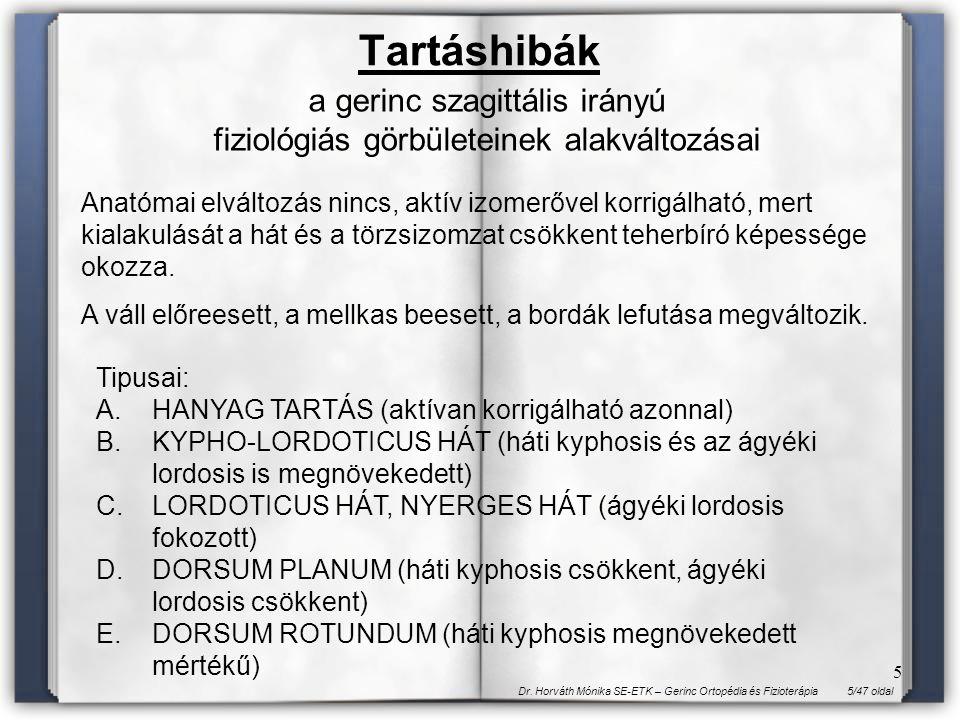 5/47 oldalDr. Horváth Mónika SE-ETK – Gerinc Ortopédia és Fizioterápia 5 Tartáshibák Anatómai elváltozás nincs, aktív izomerővel korrigálható, mert ki
