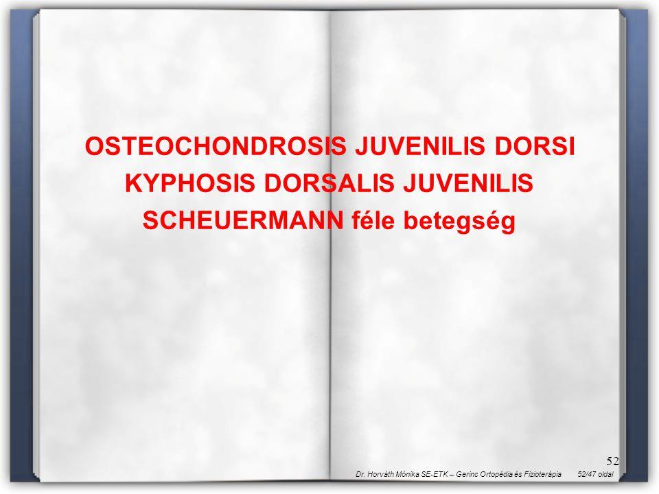 52/47 oldalDr. Horváth Mónika SE-ETK – Gerinc Ortopédia és Fizioterápia 52 OSTEOCHONDROSIS JUVENILIS DORSI KYPHOSIS DORSALIS JUVENILIS SCHEUERMANN fél