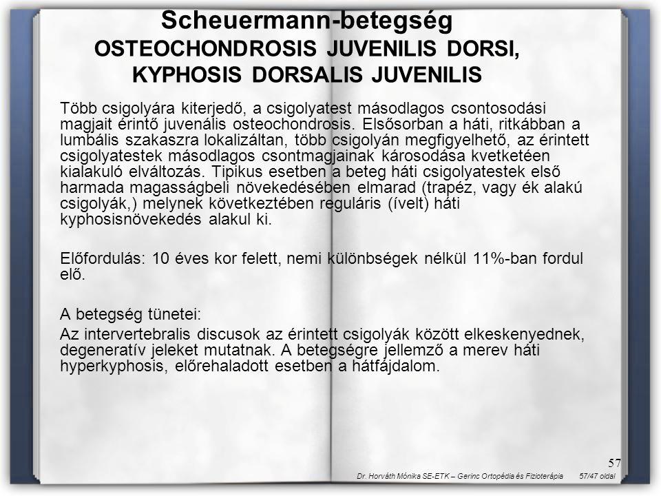 57/47 oldalDr. Horváth Mónika SE-ETK – Gerinc Ortopédia és Fizioterápia 57 Több csigolyára kiterjedő, a csigolyatest másodlagos csontosodási magjait é