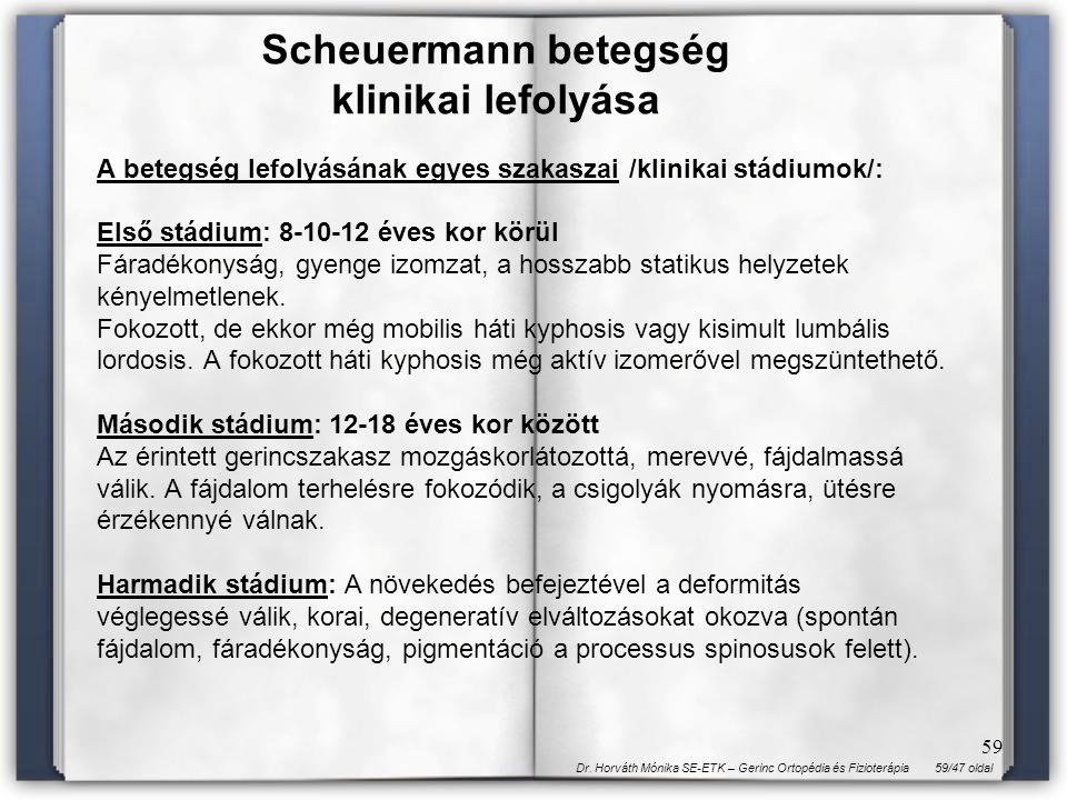 59/47 oldalDr. Horváth Mónika SE-ETK – Gerinc Ortopédia és Fizioterápia 59 A betegség lefolyásának egyes szakaszai /klinikai stádiumok/: Első stádium: