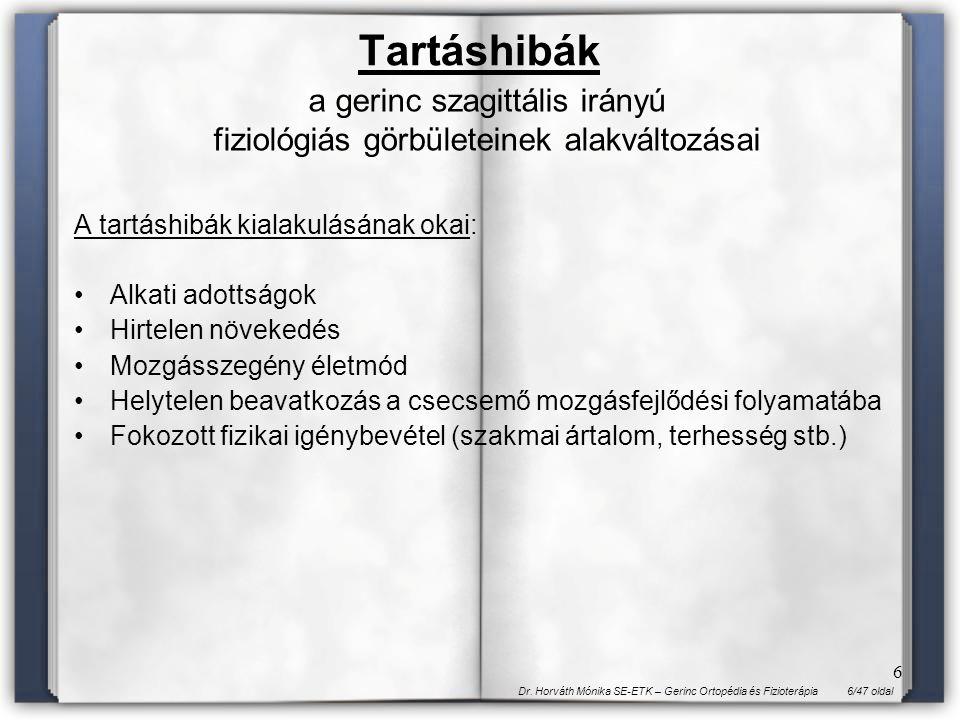 6/47 oldalDr. Horváth Mónika SE-ETK – Gerinc Ortopédia és Fizioterápia 6 Tartáshibák a gerinc szagittális irányú fiziológiás görbületeinek alakváltozá