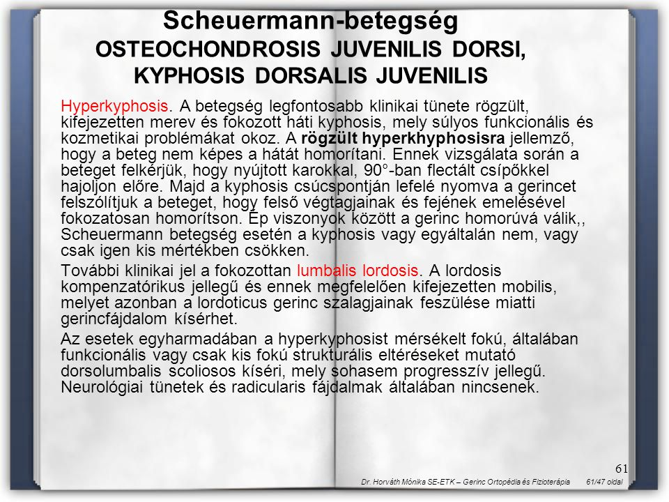 61/47 oldalDr. Horváth Mónika SE-ETK – Gerinc Ortopédia és Fizioterápia 61 Hyperkyphosis. A betegség legfontosabb klinikai tünete rögzült, kifejezette