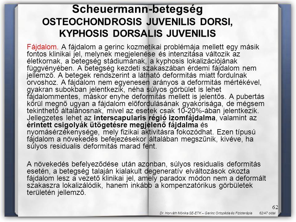 62/47 oldalDr. Horváth Mónika SE-ETK – Gerinc Ortopédia és Fizioterápia 62 Fájdalom. A fájdalom a gerinc kozmetikai problémája mellett egy másik fonto