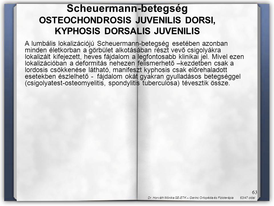 63/47 oldalDr. Horváth Mónika SE-ETK – Gerinc Ortopédia és Fizioterápia 63 A lumbális lokalizációjú Scheuermann-betegség esetében azonban minden életk