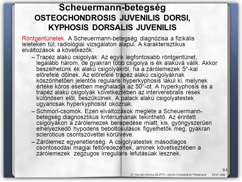 64/47 oldalDr. Horváth Mónika SE-ETK – Gerinc Ortopédia és Fizioterápia 64 Röntgentünetek. A Scheuermann-betegség diagnózisa a fizikális leleteken túl