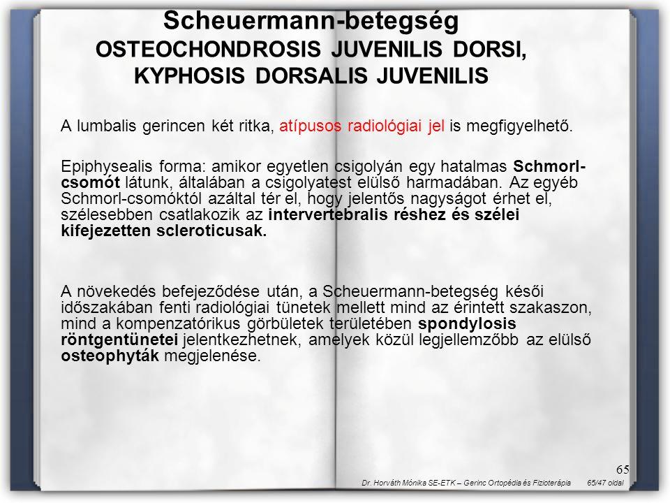 65/47 oldalDr. Horváth Mónika SE-ETK – Gerinc Ortopédia és Fizioterápia 65 A lumbalis gerincen két ritka, atípusos radiológiai jel is megfigyelhető. E