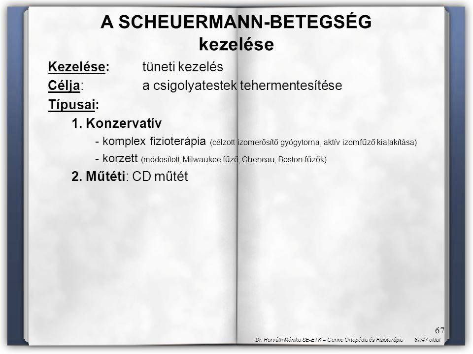 67/47 oldalDr. Horváth Mónika SE-ETK – Gerinc Ortopédia és Fizioterápia 67 Kezelése:tüneti kezelés Célja:a csigolyatestek tehermentesítése Típusai: 1.
