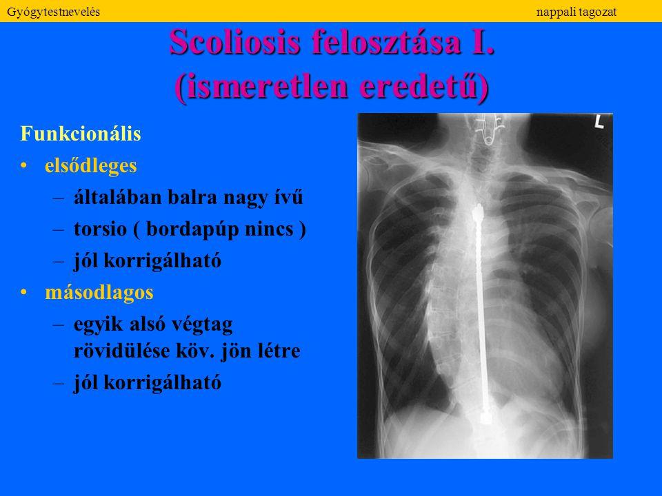 Scoliosis felosztása I. (ismeretlen eredetű) Funkcionális elsődleges –általában balra nagy ívű –torsio ( bordapúp nincs ) –jól korrigálható másodlagos