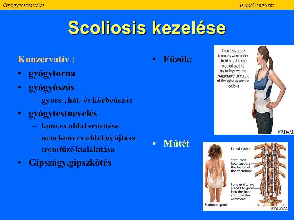 Scoliosis kezelése Konzervatív : gyógytorna gyógyúszás –gyors-, hát- és körbeúszás gyógytestnevelés –konvex oldal erősítése –nem konvex oldal nyújtása