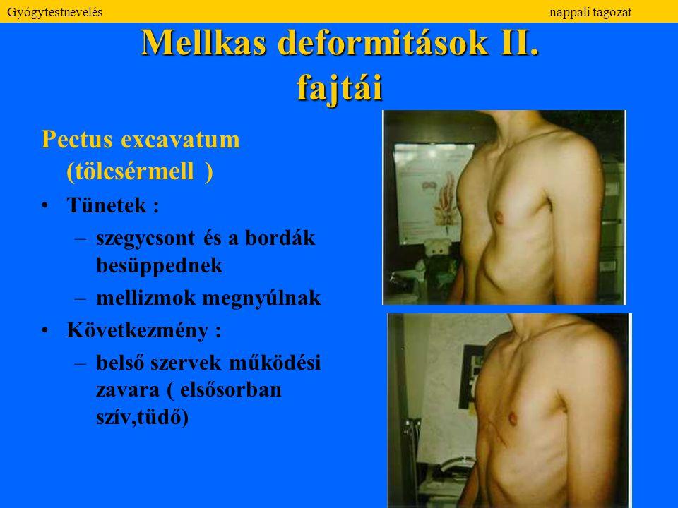 Mellkas deformitások II. fajtái Pectus excavatum (tölcsérmell ) Tünetek : –szegycsont és a bordák besüppednek –mellizmok megnyúlnak Következmény : –be