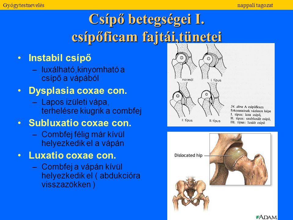 Csípő betegségei I. csípőficam fajtái,tünetei Instabil csípő –luxálható,kinyomható a csípő a vápából Dysplasia coxae con. –Lapos izületi vápa, terhelé