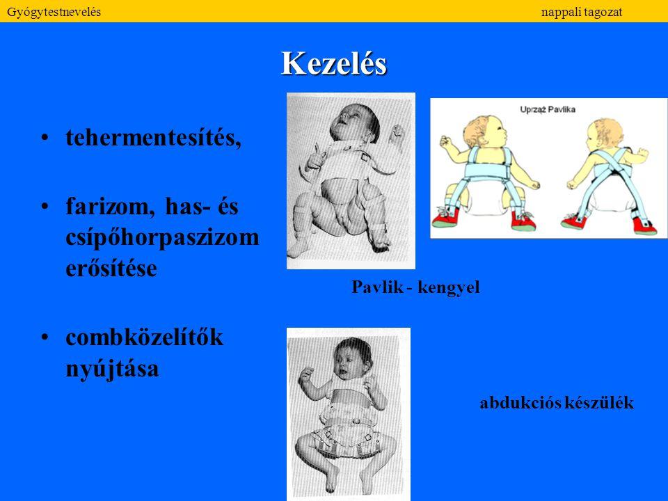 Kezelés tehermentesítés, farizom, has- és csípőhorpaszizom erősítése combközelítők nyújtása Pavlik - kengyel abdukciós készülék