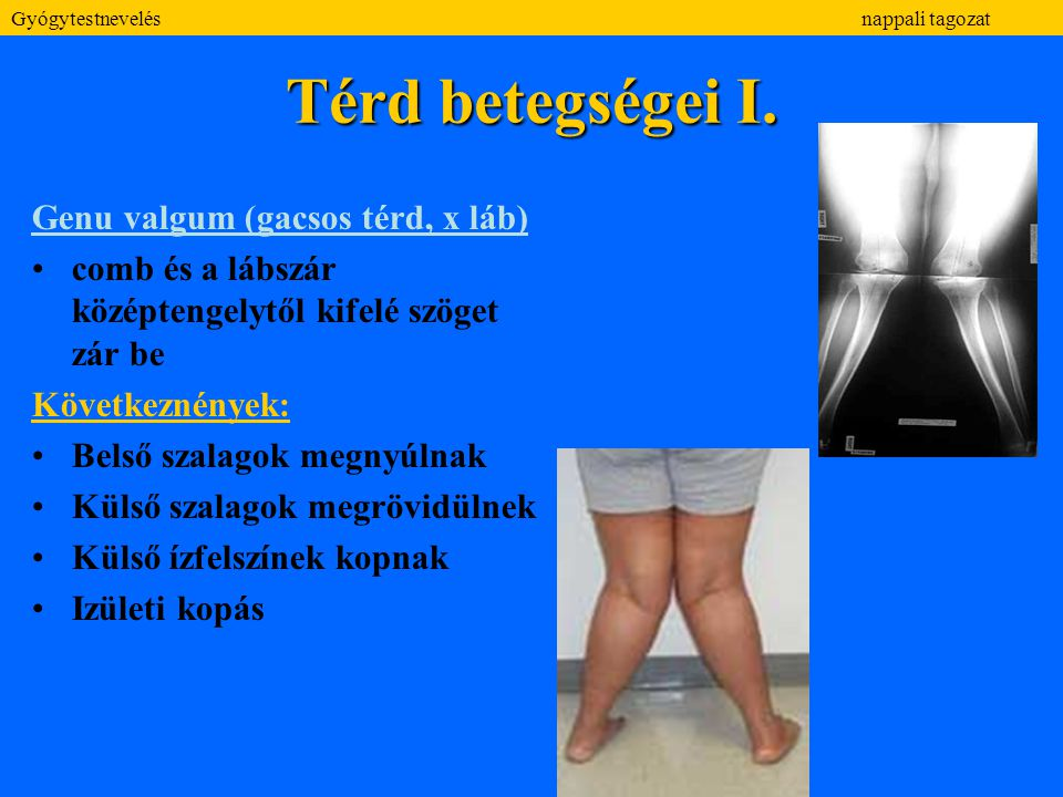 Térd betegségei I. Genu valgum (gacsos térd, x láb) comb és a lábszár középtengelytől kifelé szöget zár be Következnények: Belső szalagok megnyúlnak K