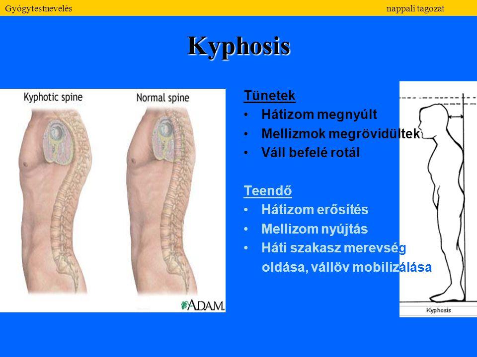 Kyphosis Tünetek Hátizom megnyúlt Mellizmok megrövidültek Váll befelé rotál Teendő Hátizom erősítés Mellizom nyújtás Háti szakasz merevség oldása, vál
