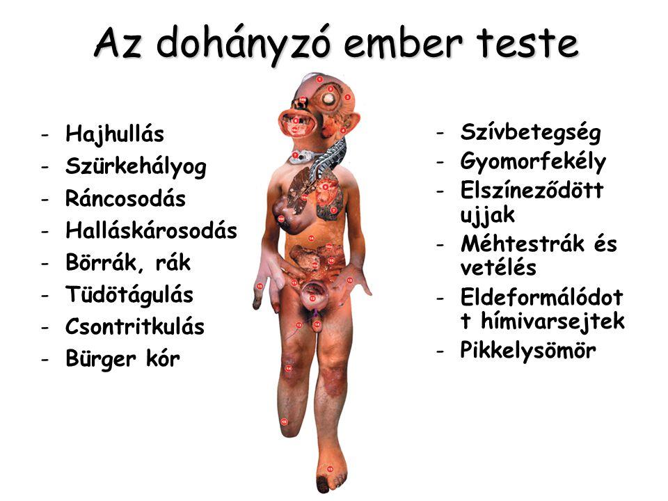 Az dohányzó ember teste -Hajhullás -Szürkehályog -Ráncosodás -Halláskárosodás -Börrák, rák -Tüdötágulás -Csontritkulás -Bürger kór -Szívbetegség -Gyom