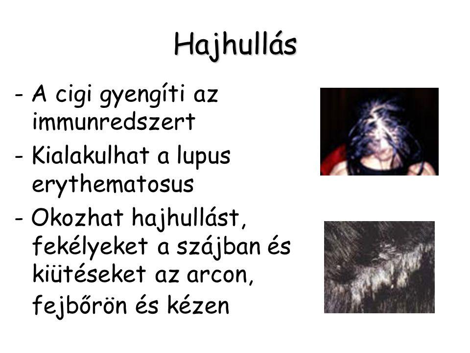 Hajhullás - A cigi gyengíti az immunredszert - Kialakulhat a lupus erythematosus - Okozhat hajhullást, fekélyeket a szájban és kiütéseket az arcon, fe