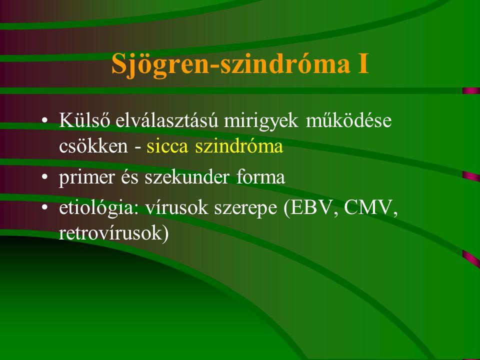 Sjögren-szindróma I Külső elválasztású mirigyek működése csökken - sicca szindróma primer és szekunder forma etiológia: vírusok szerepe (EBV, CMV, ret