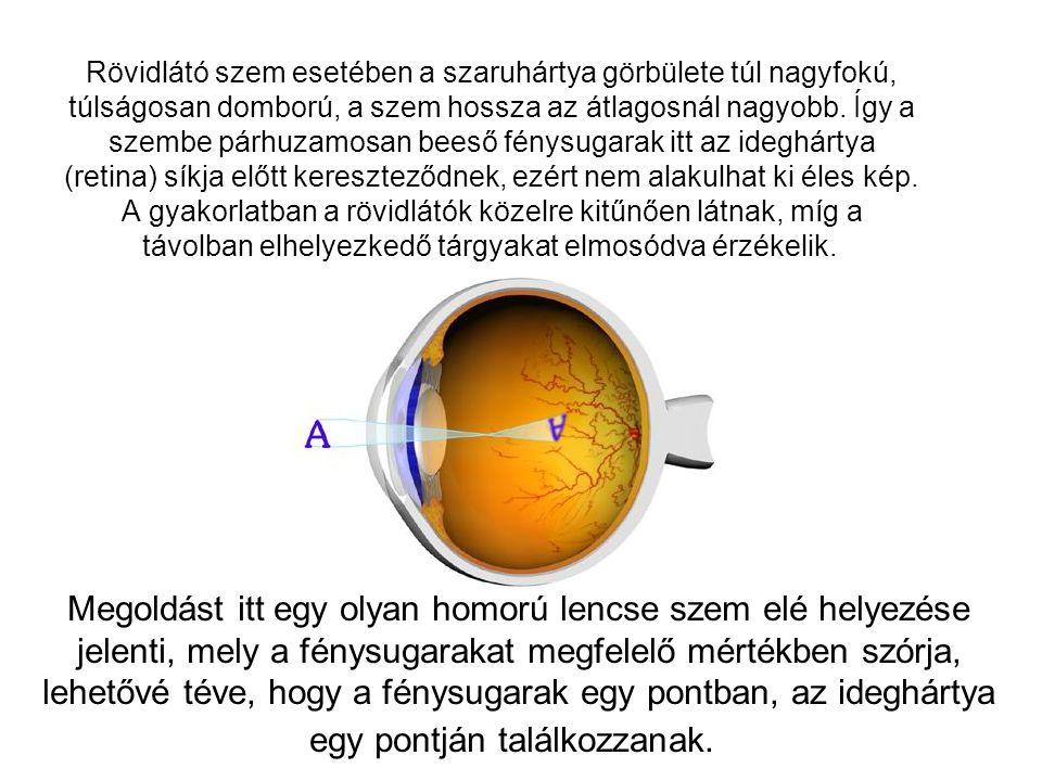 Rövidlátó szem esetében a szaruhártya görbülete túl nagyfokú, túlságosan domború, a szem hossza az átlagosnál nagyobb. Így a szembe párhuzamosan beeső