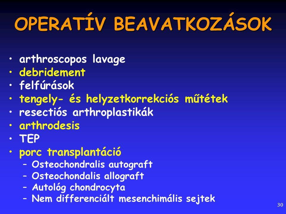 30 OPERATÍV BEAVATKOZÁSOK arthroscopos lavage debridement felfúrások tengely- és helyzetkorrekciós műtétek resectiós arthroplastikák arthrodesis TEP p