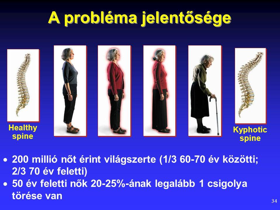 34 A probléma jelentősége Healthy spine Kyphotic spine  200 millió nőt érint világszerte (1/3 60-70 év közötti; 2/3 70 év feletti)  50 év feletti nő