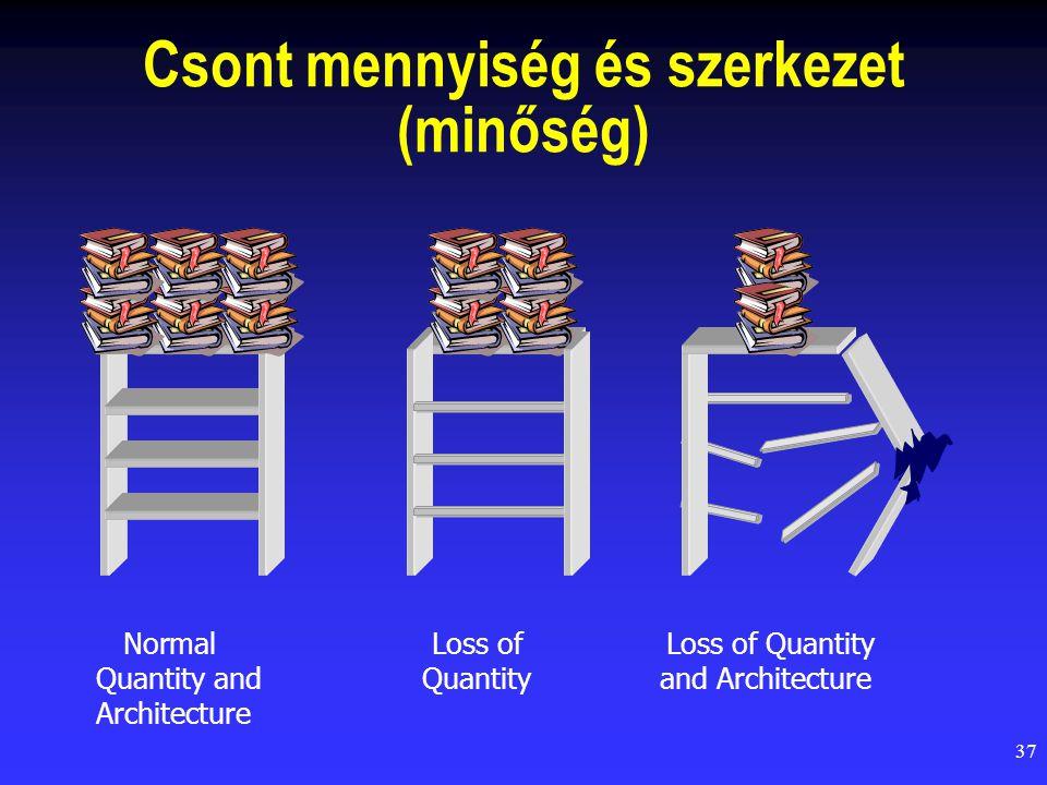 37 Csont mennyiség és szerkezet (minőség) NormalLoss ofLoss of Quantity Quantity andQuantityand Architecture Architecture