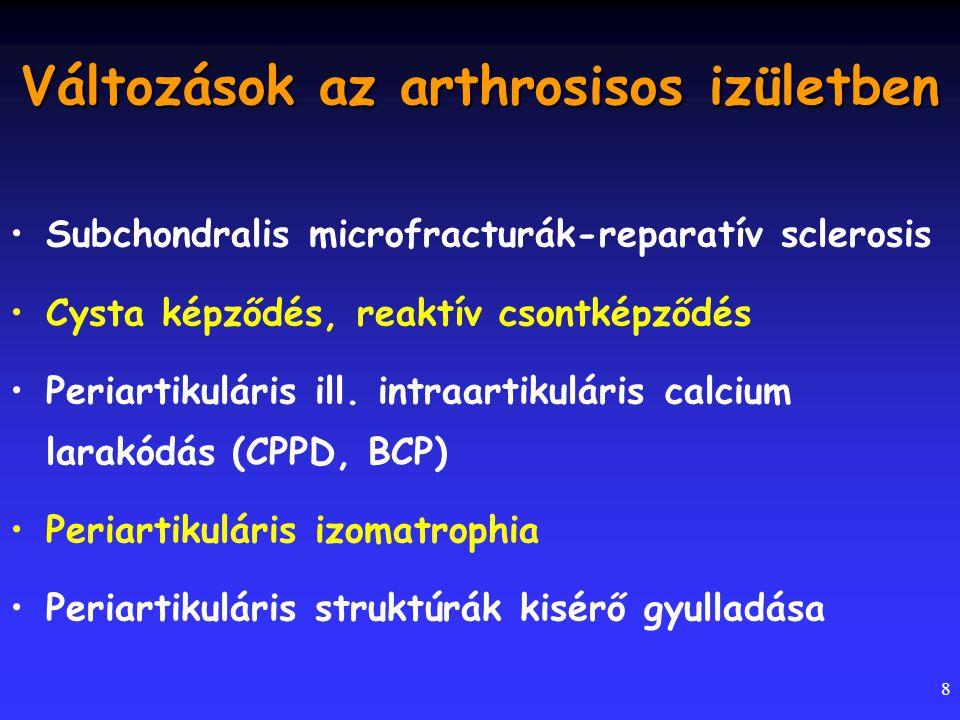 8 Változások az arthrosisos izületben Subchondralis microfracturák-reparatív sclerosis Cysta képződés, reaktív csontképződés Periartikuláris ill. intr