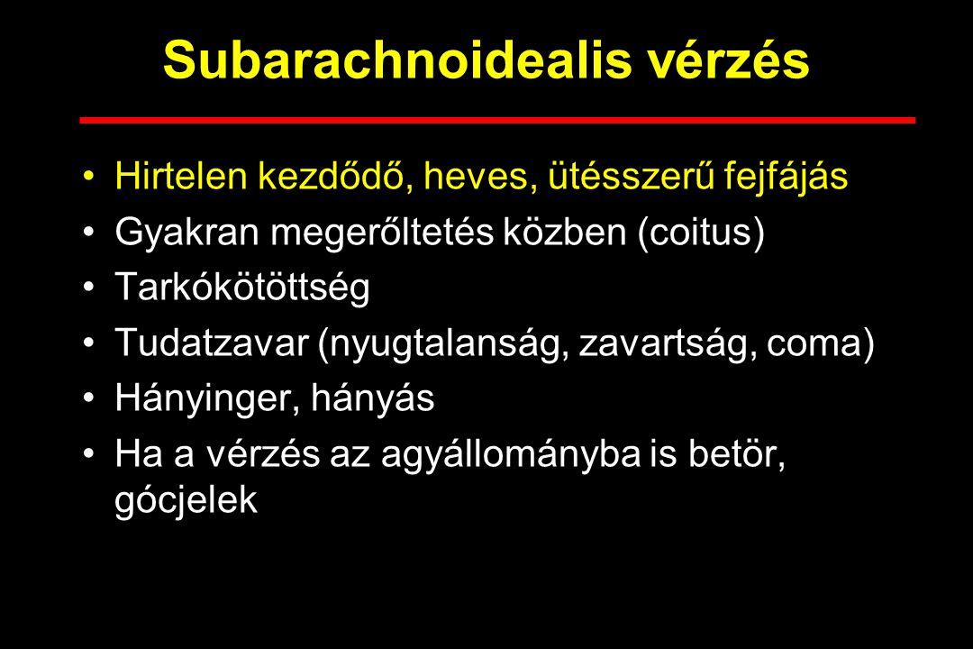 Subarachnoidealis vérzés Hirtelen kezdődő, heves, ütésszerű fejfájás Gyakran megerőltetés közben (coitus) Tarkókötöttség Tudatzavar (nyugtalanság, zav