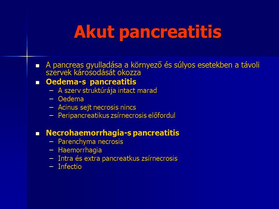 Akut pancreatitis A pancreas gyulladása a környező és súlyos esetekben a távoli szervek károsodását okozza A pancreas gyulladása a környező és súlyos