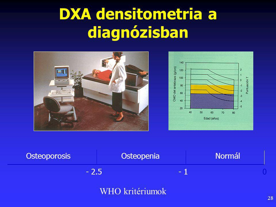 29 Normál csont Osteoporosis Osteoporosis NIH Consensus Development Panel on Osteoporosis.