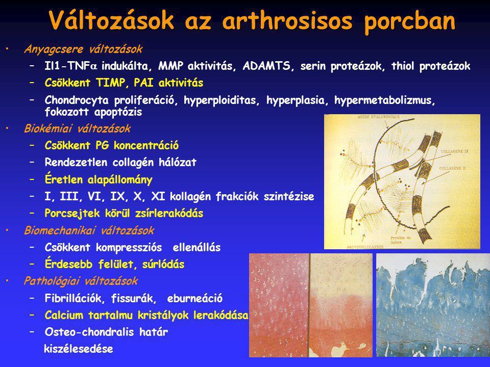 4 Változások az arthrosisos porcban Anyagcsere változások –Il1-TNF  indukálta, MMP aktivitás, ADAMTS, serin proteázok, thiol proteázok –Csökkent TIMP, PAI aktivitás –Chondrocyta proliferáció, hyperploiditas, hyperplasia, hypermetabolizmus, fokozott apoptózis Biokémiai változások –Csökkent PG koncentráció –Rendezetlen collagén hálózat –Éretlen alapállomány –I, III, VI, IX, X, XI kollagén frakciók szintézise –Porcsejtek körül zsírlerakódás Biomechanikai változások –Csökkent kompressziós ellenállás –Érdesebb felület, súrlódás Pathológiai változások –Fibrillációk, fissurák, eburneáció –Calcium tartalmu kristályok lerakódása –Osteo-chondralis határ kiszélesedése