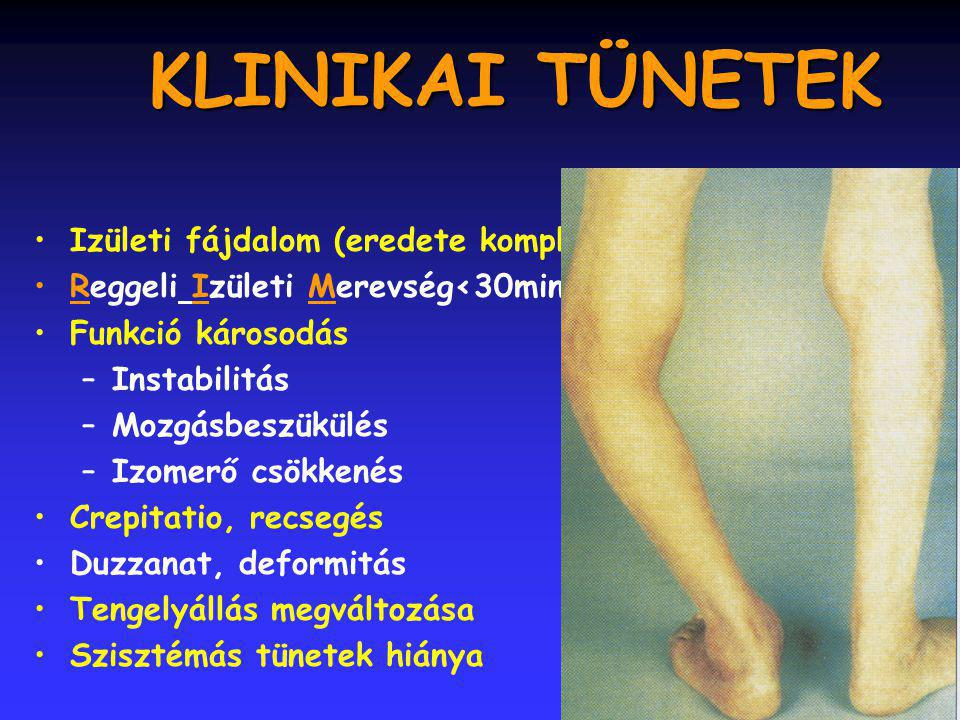 7 KLINIKAI TÜNETEK Izületi fájdalom (eredete komplex) Reggeli Izületi Merevség<30min Funkció károsodás –Instabilitás –Mozgásbeszükülés –Izomerő csökkenés Crepitatio, recsegés Duzzanat, deformitás Tengelyállás megváltozása Szisztémás tünetek hiánya